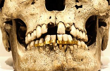 Ancient Egyptians preferred gold orthodontics dentures